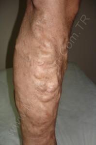 bacak iç kenarda varis tedavisi önce