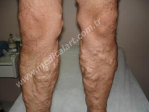 Bacak varis tedavi öncesi