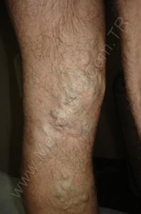Bacakta kalın varis tedavi öncesi