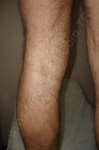 bacakta kalın varis tedavi sonrası