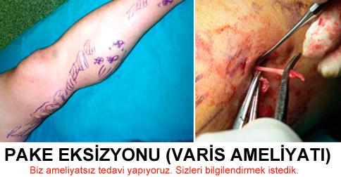 Varis Ameliyatı