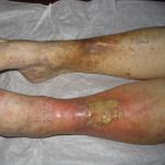 Bacaklarda Renk Değişimi