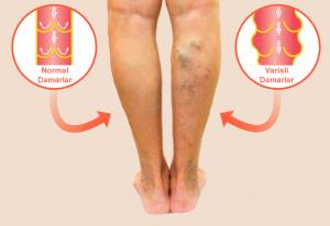 Bacaklarda Damarların Belirgin Hale Gelmesi