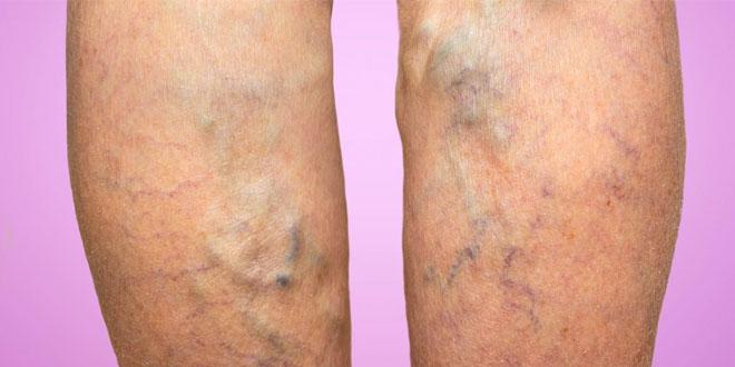 Varis hastalığı bacağı kaplayabilir.